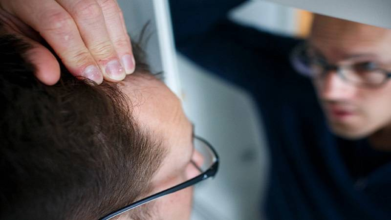 BERLIN, GERMANY - FEBRUARY 26: Hair loss, posed scene of a man examining his receding hairline in a mirror on February 26, 2015 in Berlin, Germany.  (Photo by Thomas Trutschel/Photothek via Getty Images)