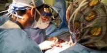 استئصال ورم سرطاني يستغرق 18 ساعة في السعودية