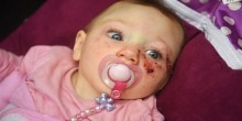 نجاة مولودة تحمل ورمًا في رأسها تحير الأطباء