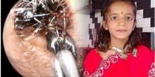 بالفيديو: مستوطنة نمل داخل أذن طفلة صغيرة