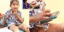 بالفيديو: مرض نادر يجعل طفلان يأكلان أصابعهما دون ألم