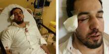 الإعتداء بالضرب على موظف يفقده البصر في عينه اليمنى