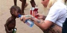طفل نيجيري ترميه عائلة فتعالجه بلجيكية من سوء التغذية