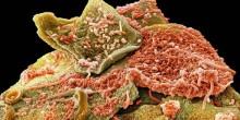 شاهد بالصور 300 نوع من البكتيريا تستوطن أسناننا