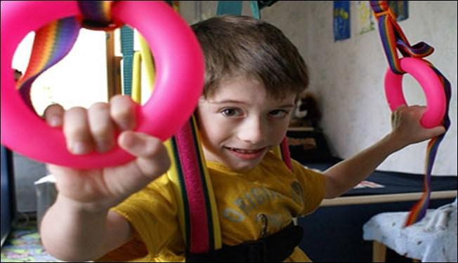 باحثون ايرانيون يتوصلون لعلاج الشلل الدماغي لدي الأطفال ومرض الأصابع الملتصقة