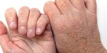كيف تحمي بشرتك من الجفاف؟