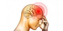 ارتفاع عدد المصابين بالسكتات الدماغية في الإمارات
