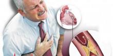 كيف تقلل الكوليسترول الضار وتزيد الكوليسترول النافع ؟