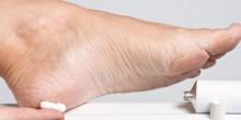 ماهو أفضل علاج للتخلص من تشققات القدمين؟