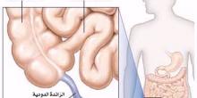 اتبع هذه الطرق البسيطة حتى لاتصاب بالتهاب الزائدة الدودية