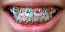 تعرف على أهم أخصائيي تقويم الأسنان في الإمارات