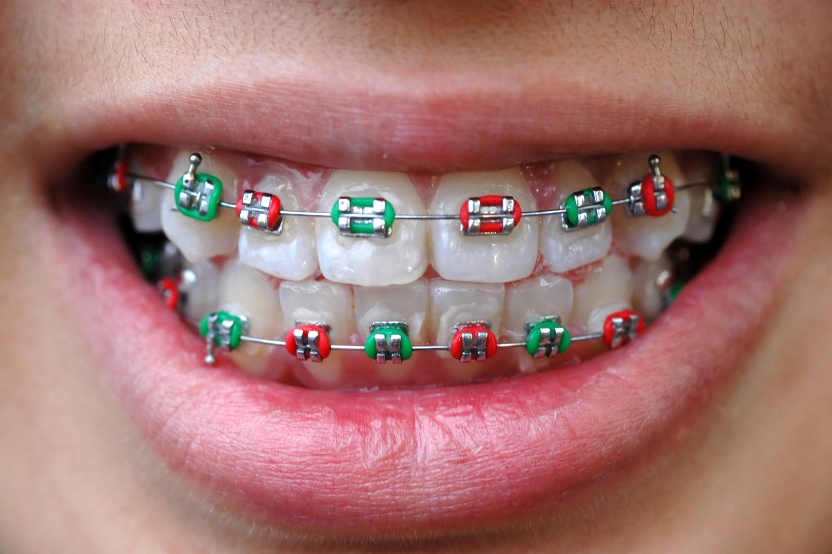 معتمدون من الأكاديمية الأمريكية لطب وتجميل الأسنان