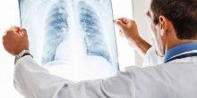 ماهو سبب ارتفاع حالات الإصابة بالالتهاب الرئوي الحاد في الإمارات؟