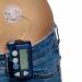 نجاح استخدام بنكرياس صناعي لمرضى السكري من النوع الأول والثاني