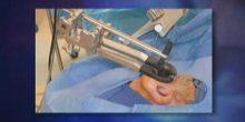 إجراء عملية إزالة ورم في الدماغ عبر الأنف الأولى من نوعها في دبي