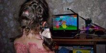 لعبة على الإنترنت تسبب حروقاً شديدة لطفلة في الخامسة